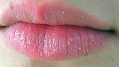 Dudak Şişmesinin Nedenleri Ve Tedavi Yöntemleri